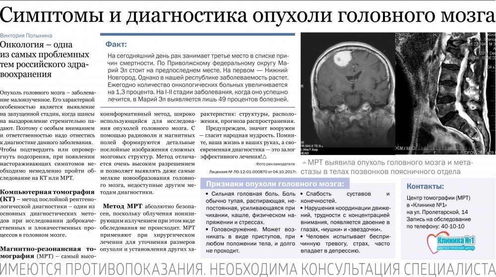 Опухоль головного мозга симптомы причины появления