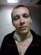 Йошкаролинцу больному раком лимфоузлов необходима помощь