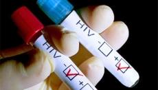В Марий Эл рост числа вновь инфицированных ВИЧ увеличился почти в два раза