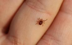 В Марий Эл больше 100 детей пострадали от укусов клещей