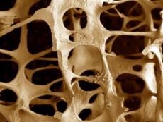 Провериться на остеопороз в Марий Эл можно бесплатно