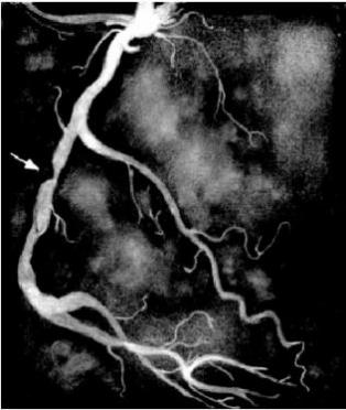 В Марий Эл впервые выполнены коронароангиография и стентирование