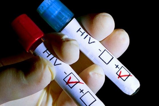 Тесты на ВИЧ планируют включить в курс диспансеризации