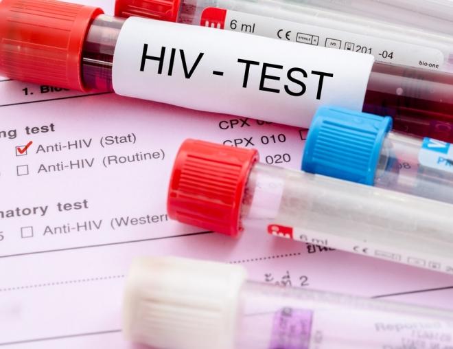 Город Волжск лидирует по числу вновь выявленных случаев заражения ВИЧ
