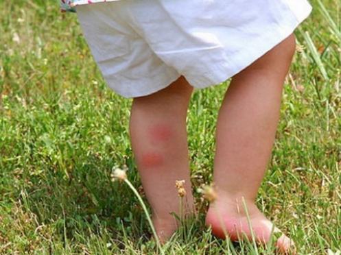 Два ребёнка пострадали от укусов клещей