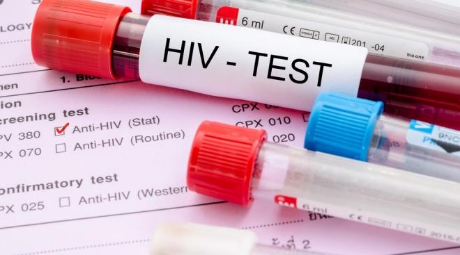 ВИЧ-инфицированного иностранца планируют выдворить из Марий Эл