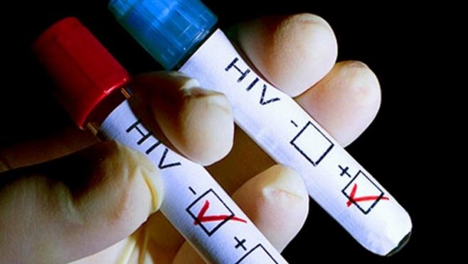 В Марий Эл 105 человек умерло от СПИДа