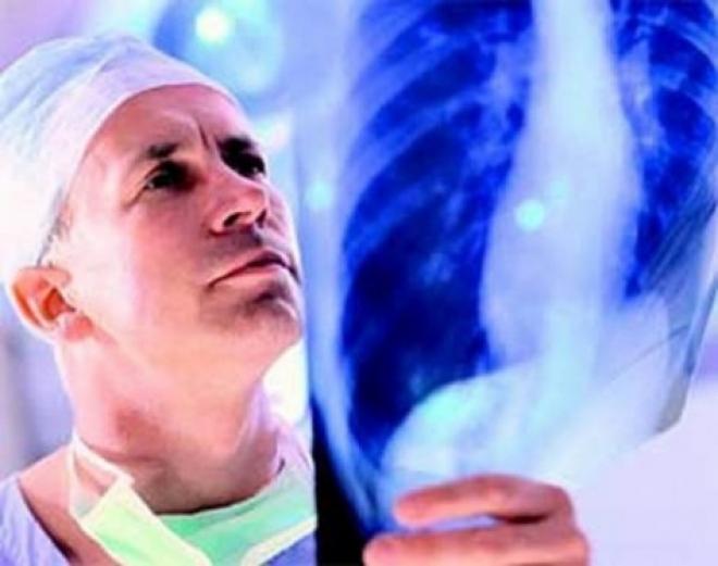 В Марий Эл неспокойная ситуация с туберкулезом