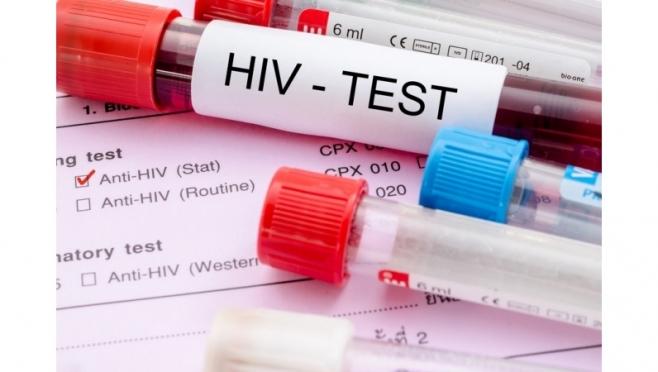 ВИЧ перестал быть болезнью только наркоманов