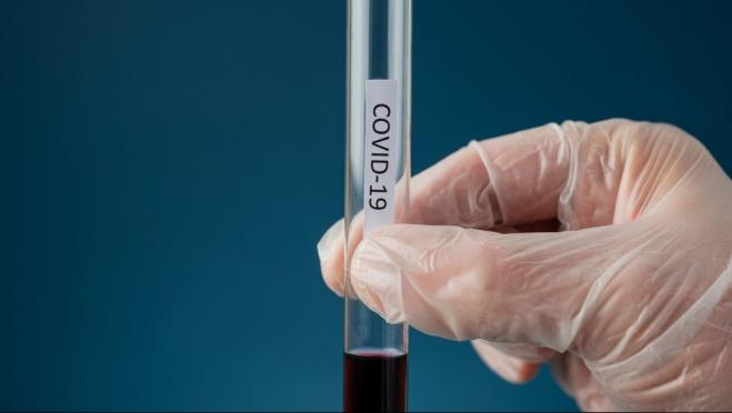 Иммунолог назвал «глубочайшую» ошибку переболевших коронавирусом
