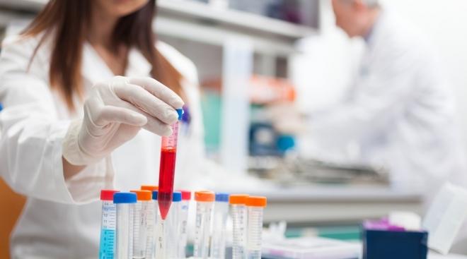 На предприятиях Марий Эл расскажут о ВИЧ-инфекции