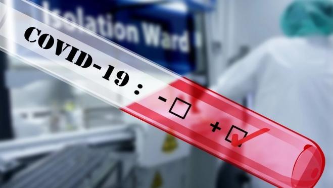 В Марий Эл повторного инфицирования у переболевших COVID-19 не зарегистрировано