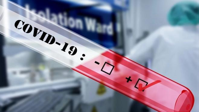 На учёте у эпидемиологов находится 1 301 человек с подозрением на COVID-19